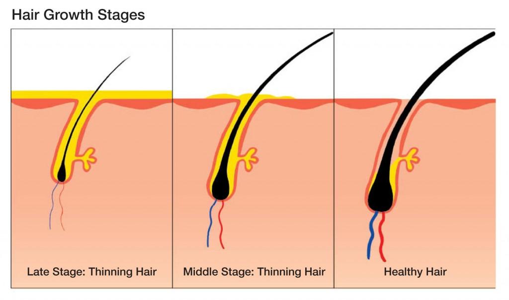 hair-surgery-003